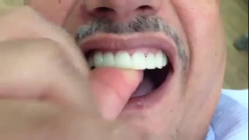 Snap on smile видео-обзор