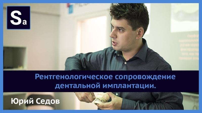 Рентгенологическое сопровождение дентальной имплантации. Бесплатный вебинар Юрия Седова