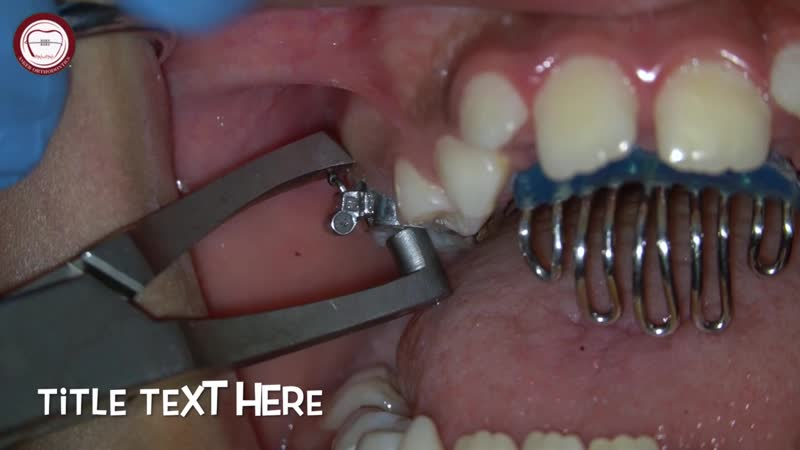 Tongue guard removal using band removing plier, Orthodontics-pedodontics. Ортодонтия