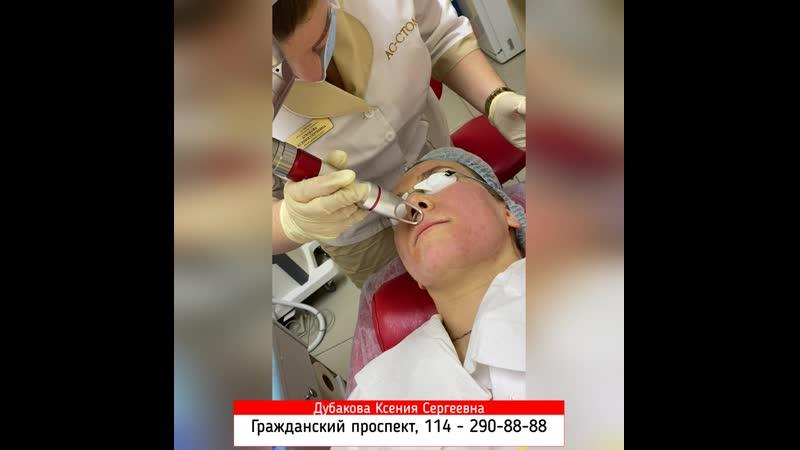 Эрбиевый пилинг в клинике АсМедия