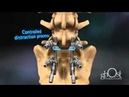Lumbar Spondylolysthesis Correction Surgery animation