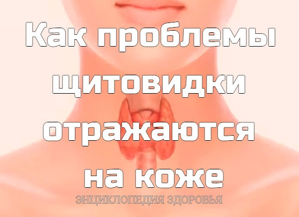 Как проблемы щитовидки отражаются на коже