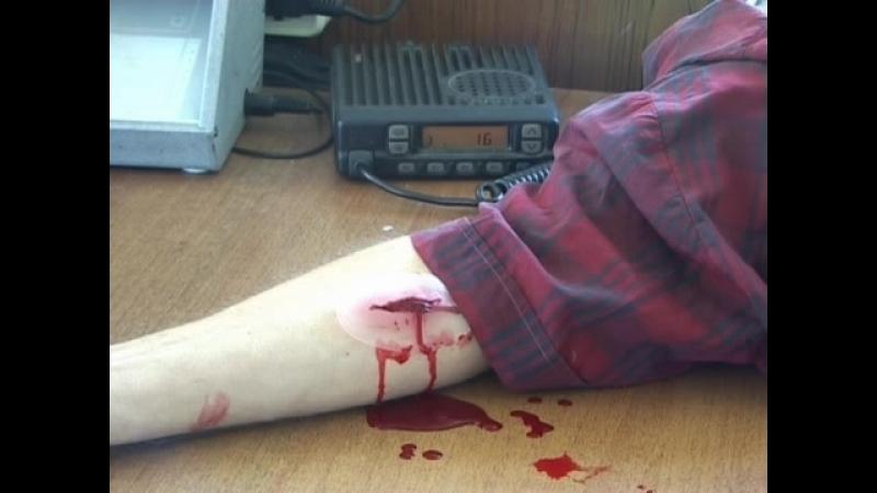 Венозное кровотечение » Freewka.com - Смотреть онлайн в хорощем качестве