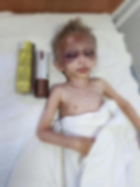 Не будут судить за издевательства над сыном Украинка Касперская Наталья Алексеевна усыновила двухлетнего Владика для денег и начала жить вместе с ним, сестрой, матерью и племянником в одной
