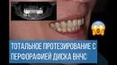 Тотальное протезирование с перфорацией диска ВНЧС и бруксизмом