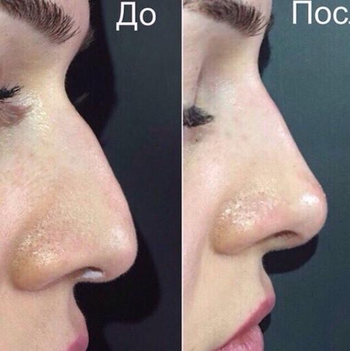 ❤Акция❤Врач- косметолог