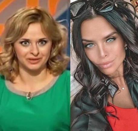 Виктория Романец уверяет, что не делала пластические операции.