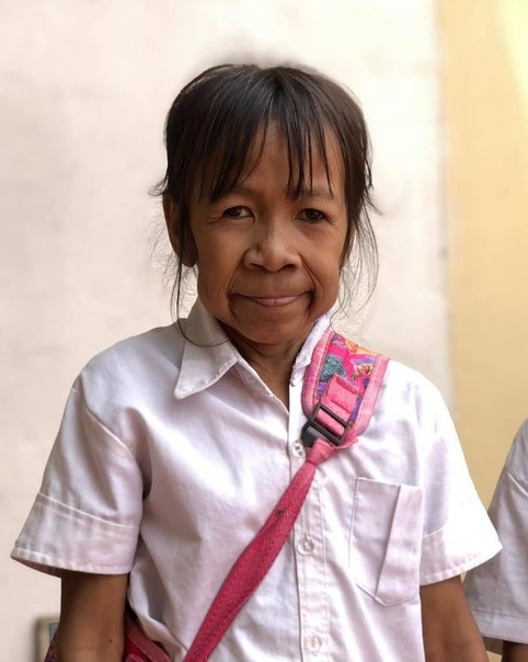 Девочка стала объектом травли из-за болезни, которая превратила ее в бабушку. История пришла к нам из Камбоджи. 10-летняя Бо Рачкин похожа на старушку из-за своей болезни. Предположительно это