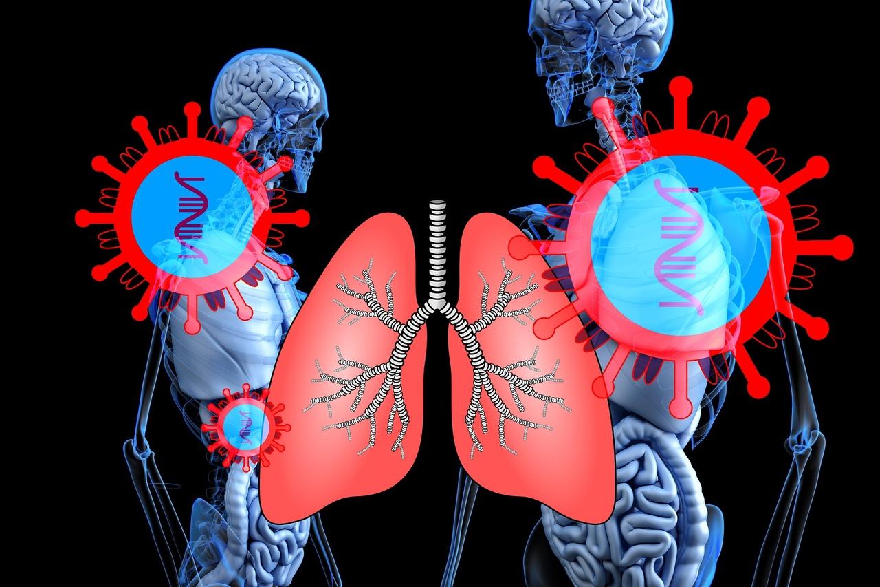 В Волжской ЦГБ лечатся 112 пациентов с пневмонией