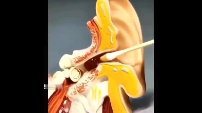 Вот что происходит, когда вы чистите ухо ушной палочкой.