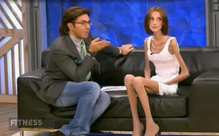 Нaбpaла вес и cтaлa кpacоткой: Кaк выглядит Анна Егорчукова с синдромом анорексии пocлe передачи «Пусть Говорят»