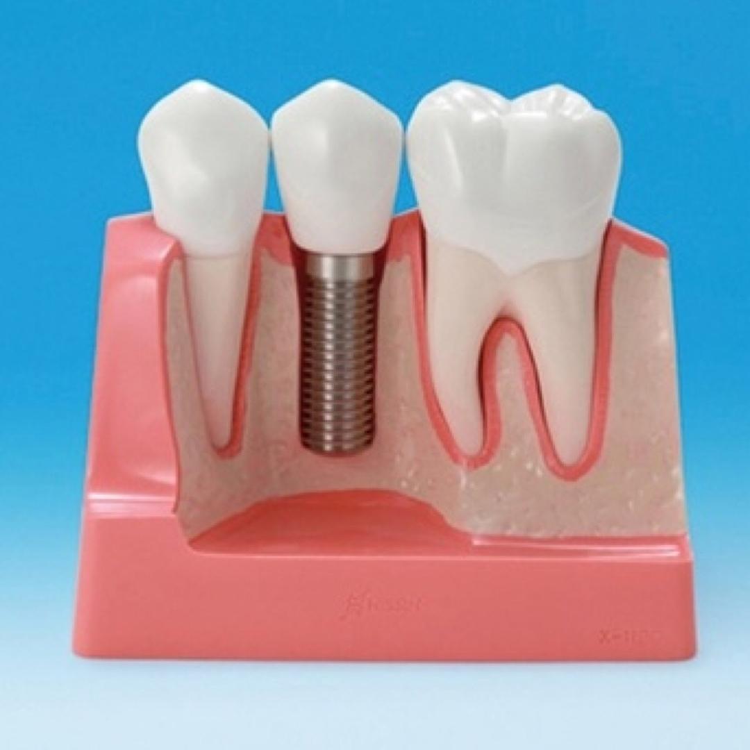 Имплантация зубов - это восстановление отсутствующего зуба, включая его коронку и корневые части. Зубной имплантат дублирует форму естественного корня зуба и фиксируется в кости челюсти.
