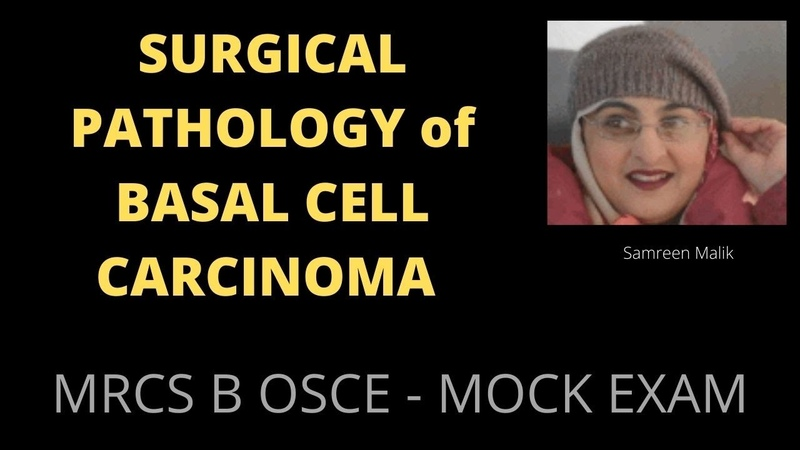 SURGICAL PATHOLOGY of BASAL CELL CARCINOMA
